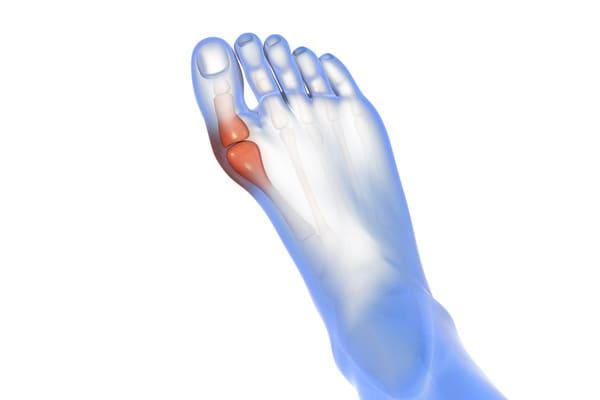 illustration chirurgie du pied