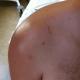 Photo cicatrice post opératoire - Disjonction acromio claviculaire