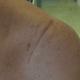 Cicatrice Disjonction acromio claviculaire