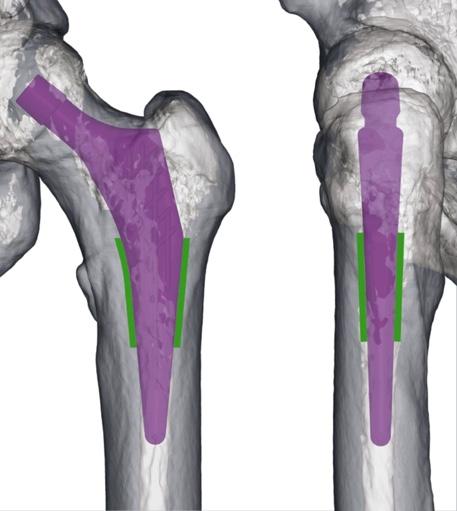 Reconstruction IRM mise en place prothèse de hanche