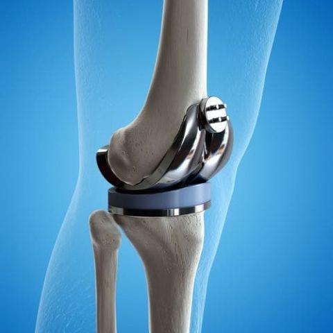 illustration 3 D prothèse de genou (500*500)