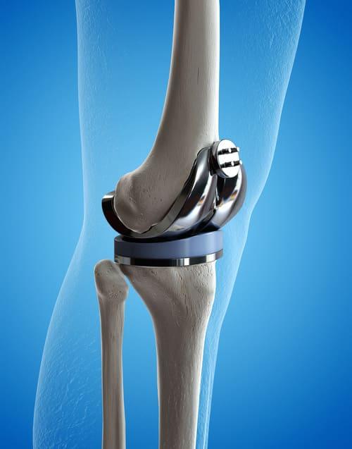 illustration 3 D prothèse de genou