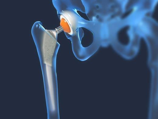 image 3D d'une prothèse de hanche
